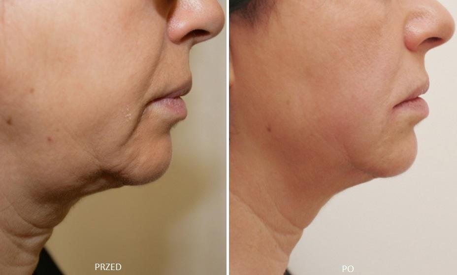 HIFU na twarz podbródek efekt przed i po